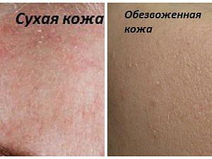 Рассказываю, как сделать проблемную кожу чистой.