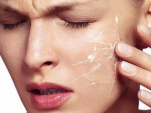 Чувствительная кожа лица | Ярмарка Мастеров - ручная работа, handmade