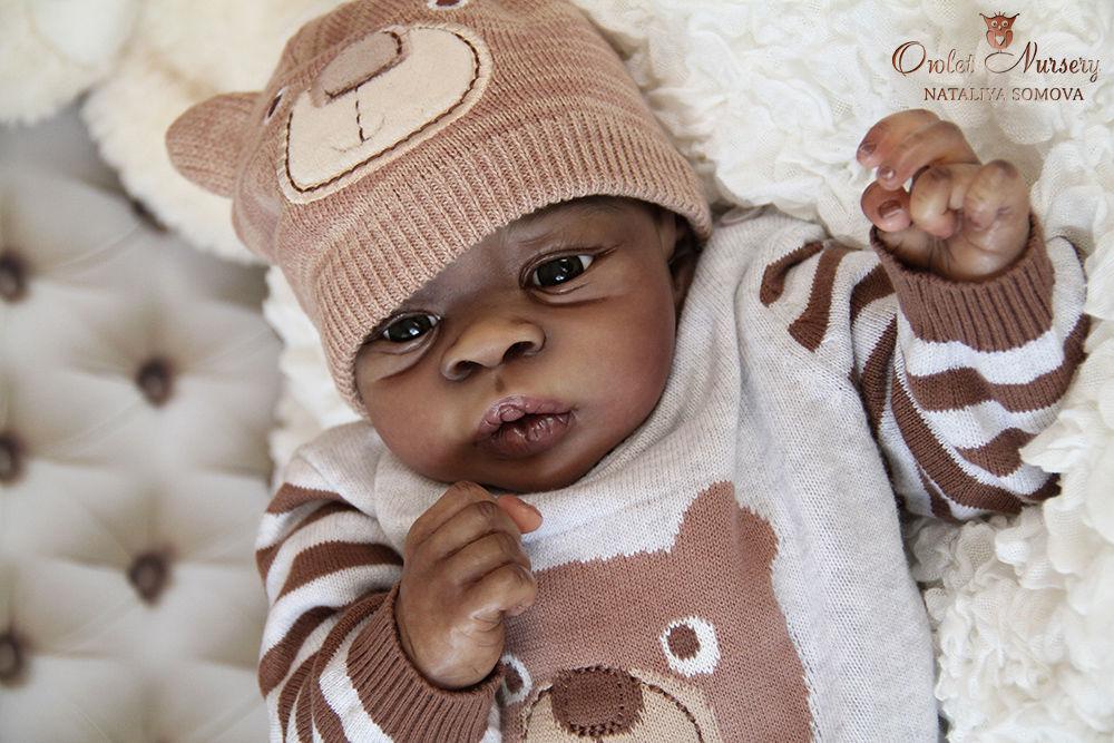 Темные пятна на теле у ребенка фото с пояснениями